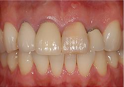 抜歯即時インプラント治療 治療前