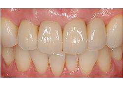 抜歯即時インプラント治療 治療後