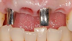 上顎前歯は2本のインプラントを支えに4本のセラミックス