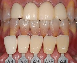 被せる必要のある歯に仮の歯を入れ、他の歯はホワイトニングで白くしました