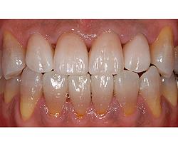 ホワイトニングした歯に合わせて上の前歯にオールセラミックスを入れました