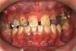 全顎治療 治療前