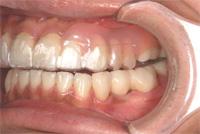 就寝時はノンクラスプ義歯の上からプロテクションスプリントを入れます