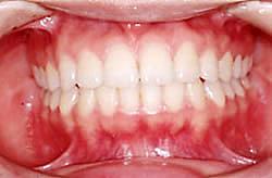 前歯の矯正治療 治療中