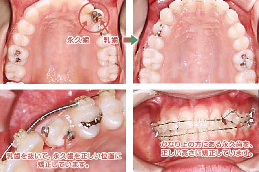 乳歯を抜いて、永久歯を正しい位置に矯正。上の方にある永久歯を正しい高さに。