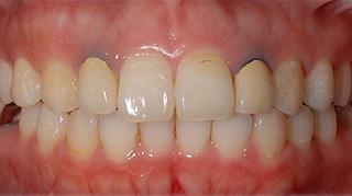 抜歯即時インプラント 治療前