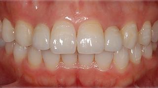 抜歯即時インプラント 治療後