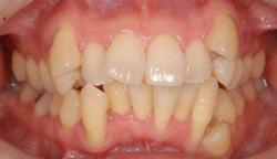 全顎的な矯正治療 治療前