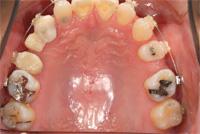 歯の歯の間が大きく空いているので矯正治療します