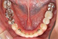 2本のインプラント、前歯の裏には矯正後の安定装置をセット