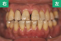 治療後の歯