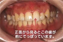 正面から見るとこの歯が前にでっぱっています