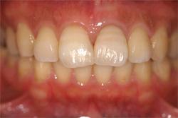 前歯の審美修復 治療後