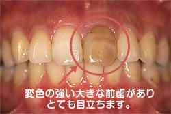 変色の強い大きな前歯