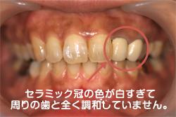 セラミック冠(クラウン)の色が白すぎて周りの歯と調和していません