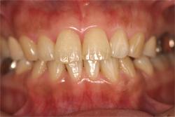 前歯の審美修復 治療前