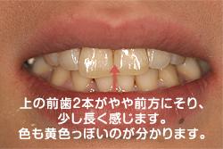 上の前歯2本が前方にそり、少し長く感じます。色も黄色っぽいです。