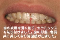 歯の表層を薄く削り、セラミックスを貼り付けました。歯の形態・色調共に美しくなり清潔感が出ました。