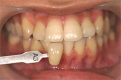 ホワイトニングを行う前の歯
