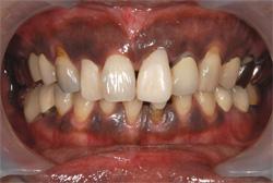 歯肉のメラニン色素除去 治療前