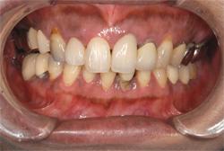 歯肉のメラニン色素除去 治療後