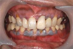 歯肉(歯茎)のメラニン色素除去1~2日後