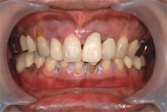 歯肉(歯茎)のメラニン色素除去1週間後