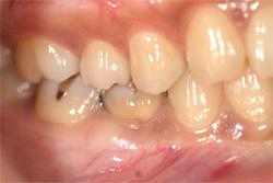 抜歯即時インプラント術 治療前
