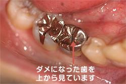 ダメになった歯です