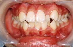 全顎的な歯の矯正 治療前