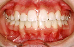全顎的な歯の矯正 治療後