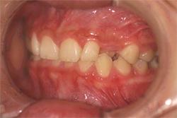 前歯の矯正治療 治療前