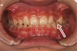 上の犬歯は裏側に生えています