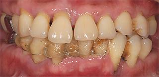 全顎インプラント 治療前