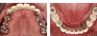 全顎インプラント 治療後