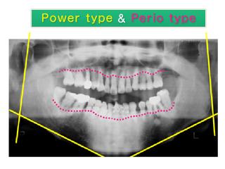 重度の歯周病に強い力が加わり、保存不可能な歯が多い