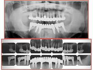 上顎は矯正で歯並びを改善。冠(クラウン)を被せて補強。化学は6本のインプラントの支えに冠(クラウン)を被せました。