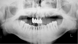 全顎治療 治療前のレントゲン