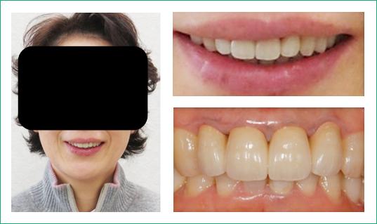 歯周病治療+オールセラミックス